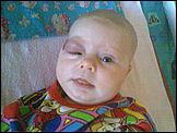 Юля на момент начала лечения