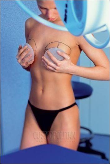 Негативные отзывы о пластике увеличение груди
