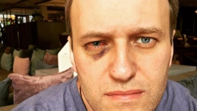 Навальный вернулся в РФ после лечения вИспании