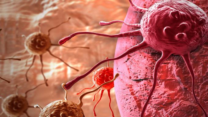 Самый опасный возраст в плане раковых заболеваний – от 45-50 лет / Фото: hi-tech.mail.ru