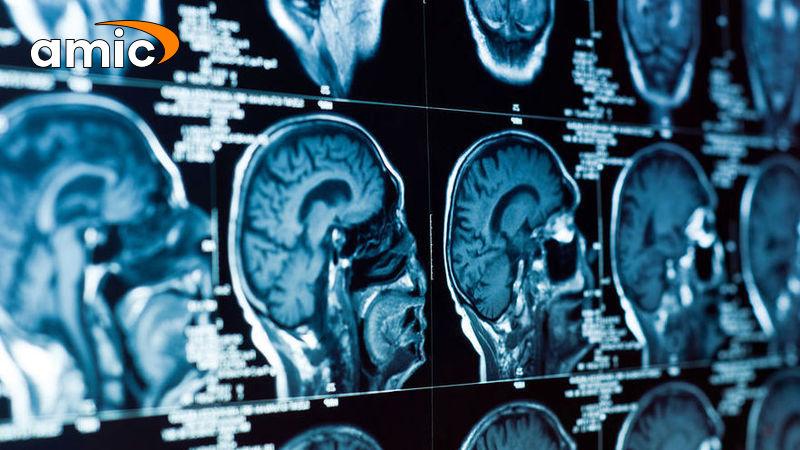 Как получить рак мозга